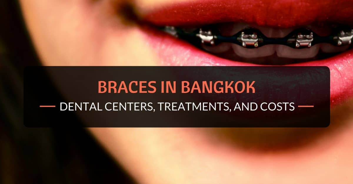 Braces in Bangkok: Dental Centers, Treatments, and Costs